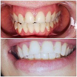 blegning af tænder aalborg