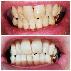 Tandblegning Aalborg